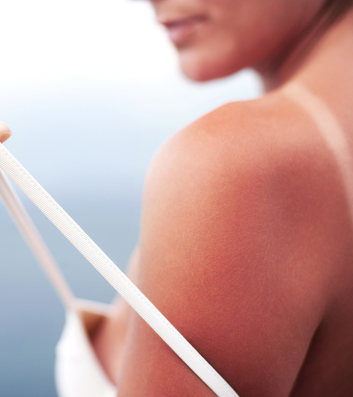 12 Simple Home Remedies To Treat Sunburns