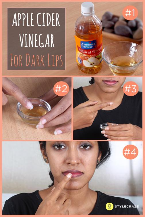 Apple-cider-Vinegar-for-dark-lips