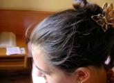 Premature gray hairs