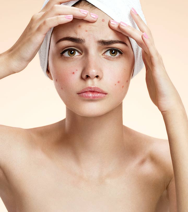 Get rid of blemishes fast home remedies