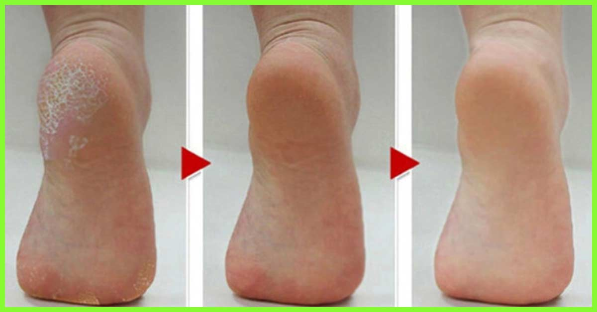 how to remove dry skin from feet