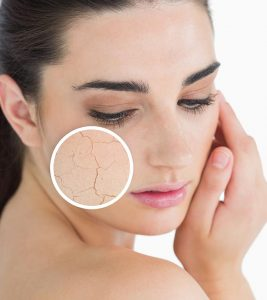 10 Top Tips For Dry Skin