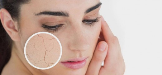 10-Top-Tips-For-Dry-Skin