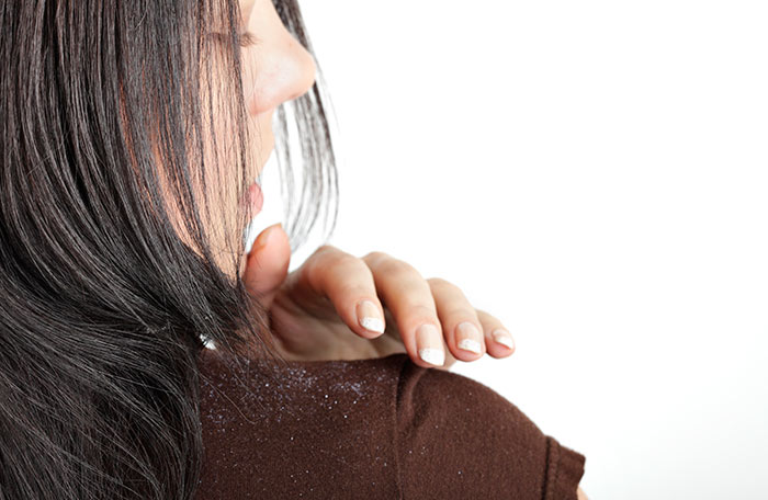 14. Baking Soda For Dandruff