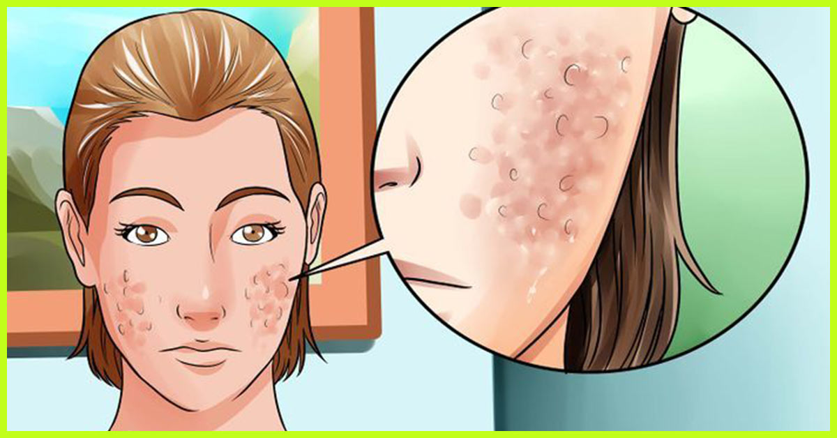 Scars get How to home rid of remedy acne