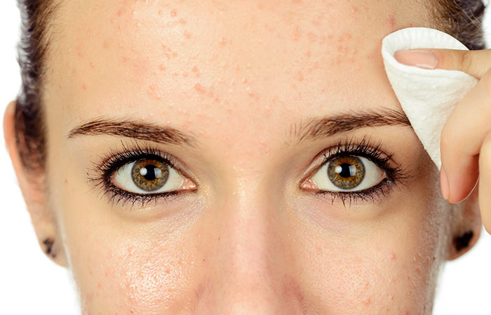 20 Beauty Benefits Of Baking Soda you Must Know!
