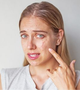 How To Get Rid Of Acne Scars And Pimple Marks Naturally
