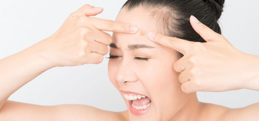 how to get rid of acne scars and redness naturally