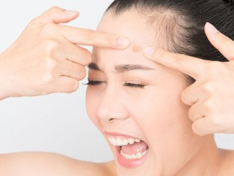 Asian-woman-squeezing-pimples