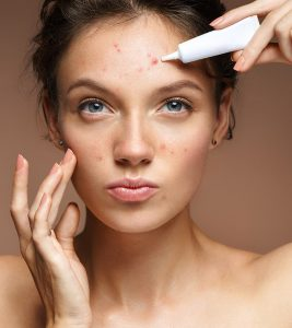 How To Get Rid Of Acne Scars And Pimple Marks Natural Way