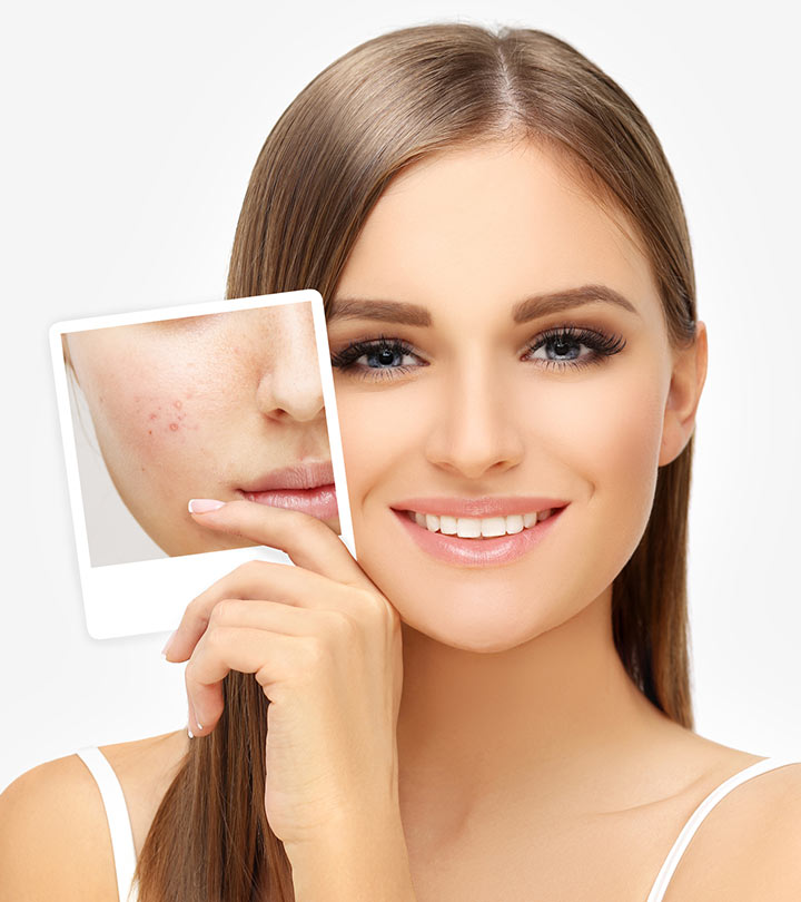 Image result for Ways of treating pigmentation and acne spots