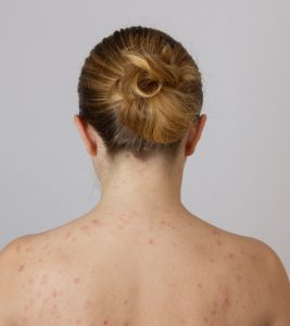 11 Simple Tips To Get Rid Of Bacne (Back Acne)