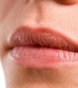 Bleeding Lips – How To Reduce The Fine Lines?