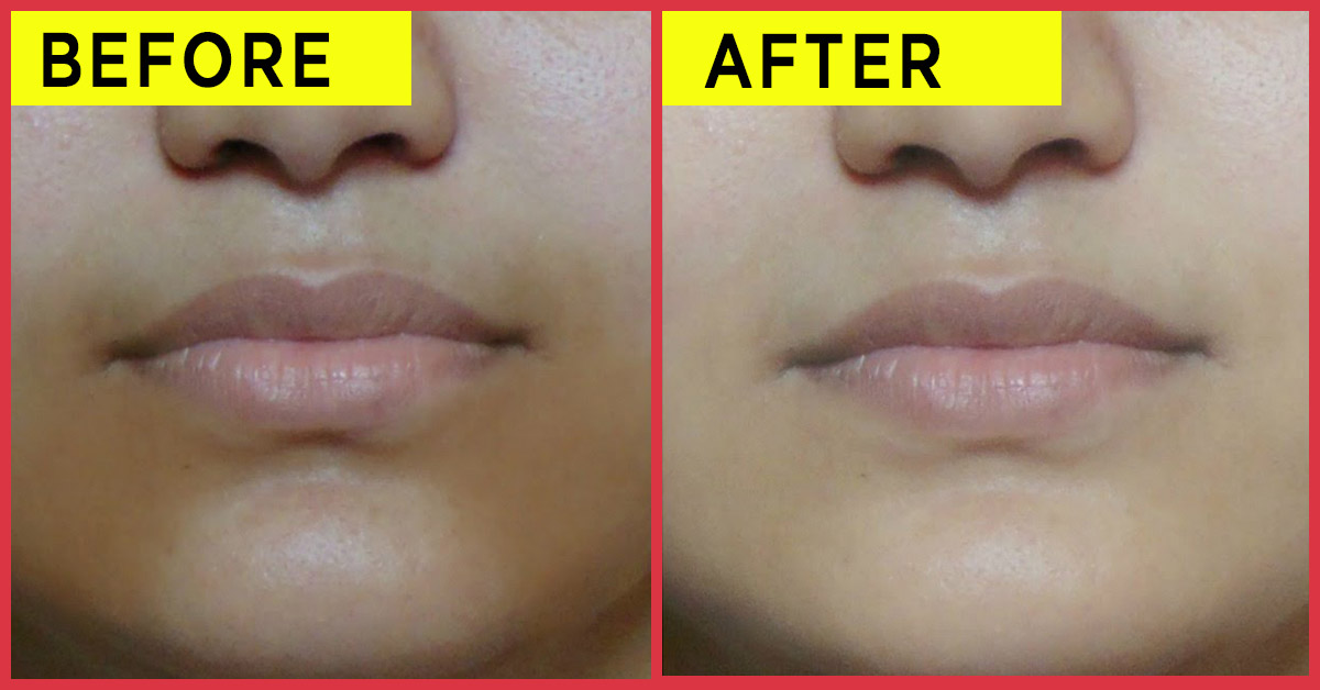 Remedy for sin discoloration after facial