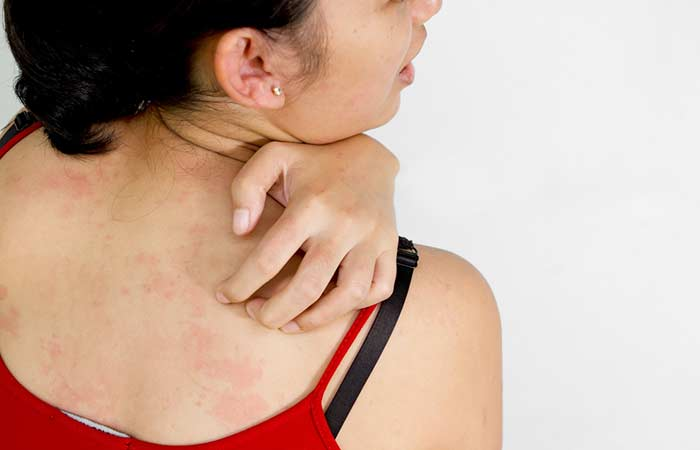 Symptoms Of Skin Infection