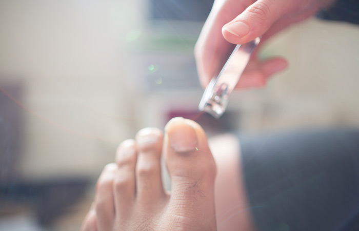 Trim Toenails Regularly