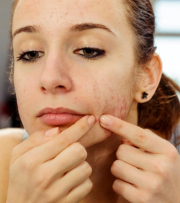 21 Simple Tips To Control Acne In Teenagers