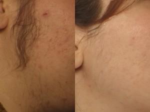 Benifits of laser hair removel