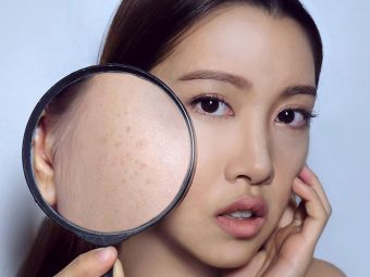 Home Remedies To Get Rid Of Dark Spots On Your Skin