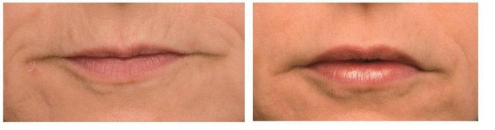 Laser Lip Rejuvenation