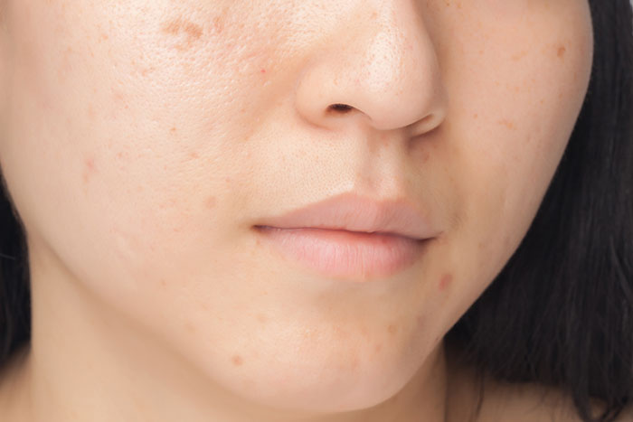 Blemishes And Open Pores