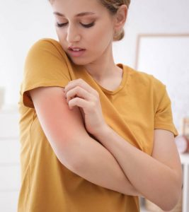 Managing, Treating, And Coping With Eczema Everything You Need To Know