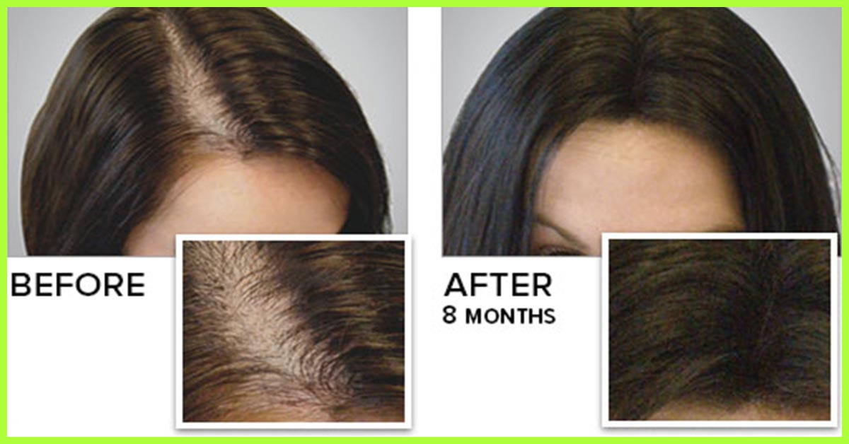 Best Natural Treatment For Female Hair Loss