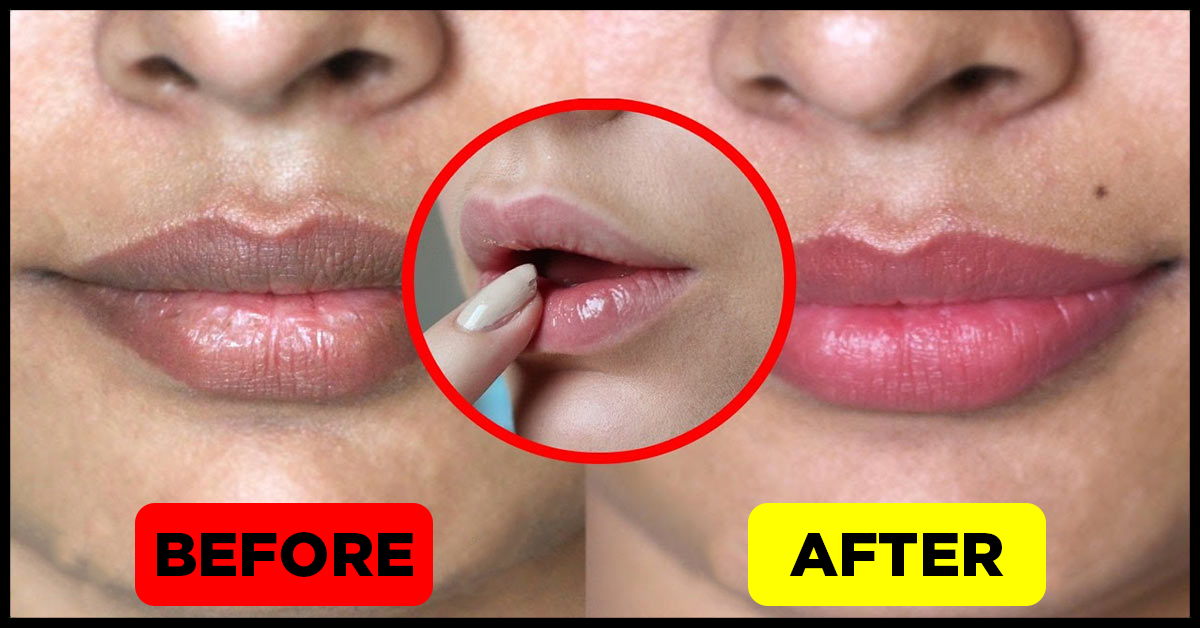 How To Get Soft Pink Lips Naturally - Top 13 Home Remedies