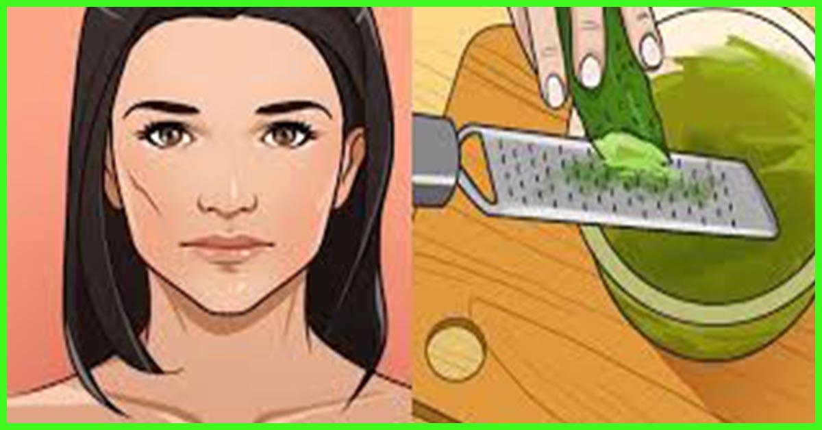 Aloe Vera for Acne and Acne Scars Treatment Get Rid Of Dandruff