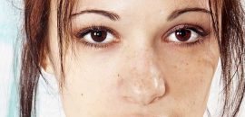 25 Home Remedies For Dark Spots That Are Guaranteed To Work