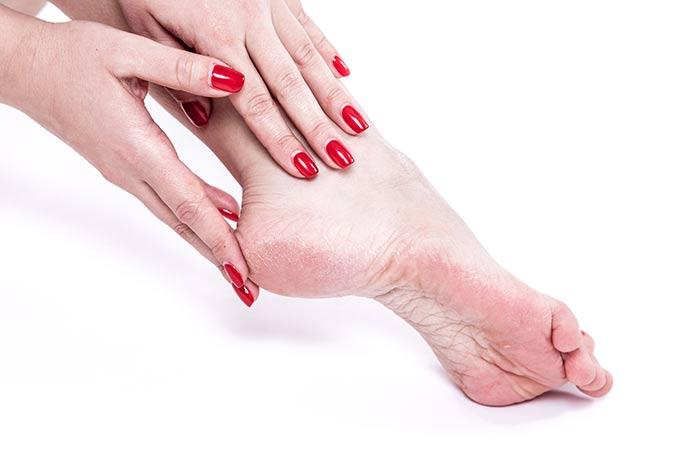 Turmeric Benefits - Heals Cracked Feet