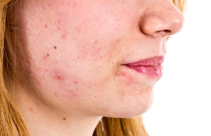 25-Home-Remedies-For-Dark-Spots-That-Are-Guaranteed-To-Work16