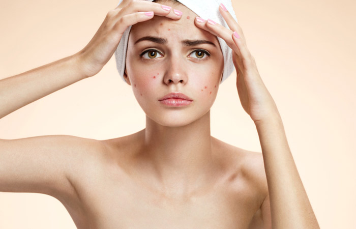 25-Home-Remedies-For-Dark-Spots-That-Are-Guaranteed-To-Work5