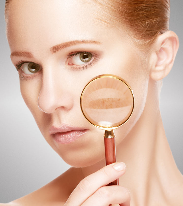 How to remove pigmentation spots on the face: tips and tricks