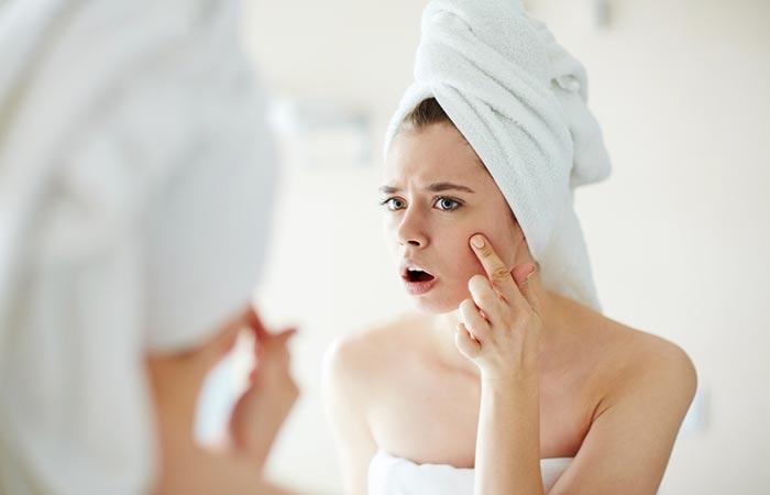 Helps Treat Acne