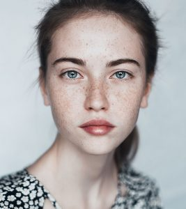 How To Get Rid of Pigmentation And Dark Spots Naturally