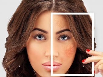 Pigmentation And Dark Spots What Causes Them And How To Manage Them Naturally