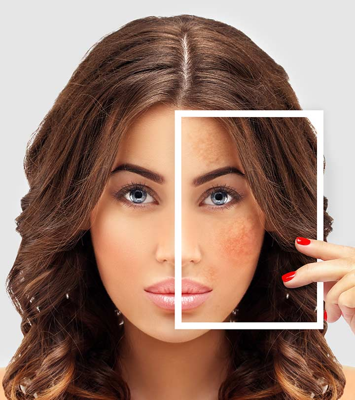 Pigmentation And Dark Spots: What Causes Them And How To Manage Them Naturally