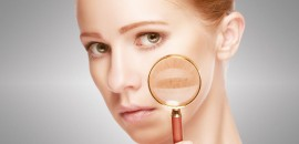 Remove Skin Pigmentation
