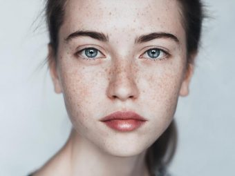 Skin Pigmentation And Dark Spots