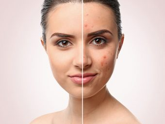10 Simple And Effective Ayurvedic Treatments For Pimples