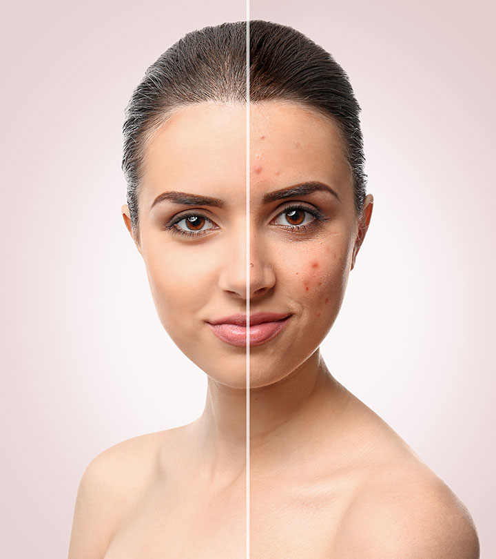 10 Simple And Effective Ayurvedic Treatments For Pimples and Acne
