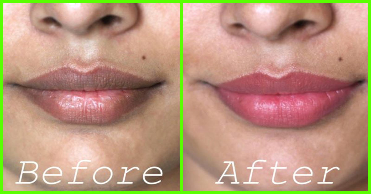 How To Lighten Your Lip Color Naturally