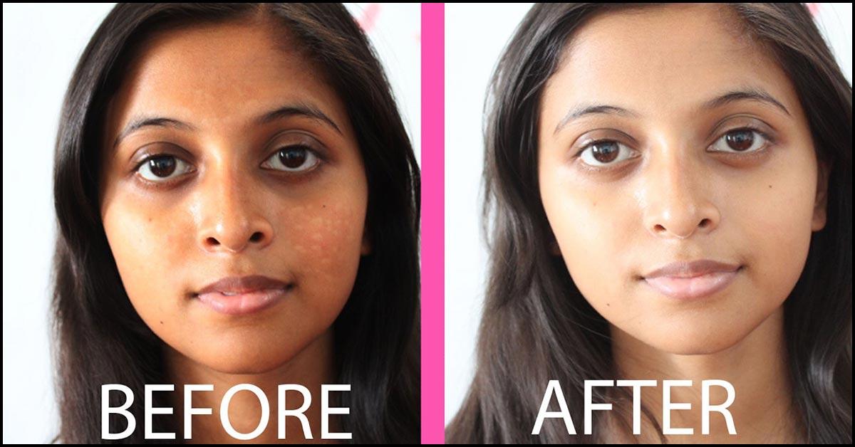 7 Papaya Face Packs For Glowing, Fair, And Smooth Skin