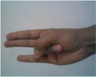 agni mudra benefits