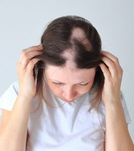 Alopecia Areata: Causes, Types, And Treatment