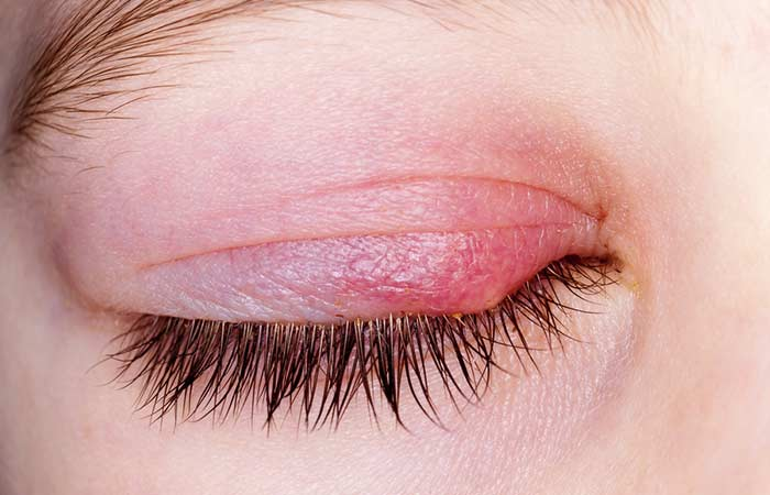 Causes Of Dandruff On Eyelashes And Eyebrows
