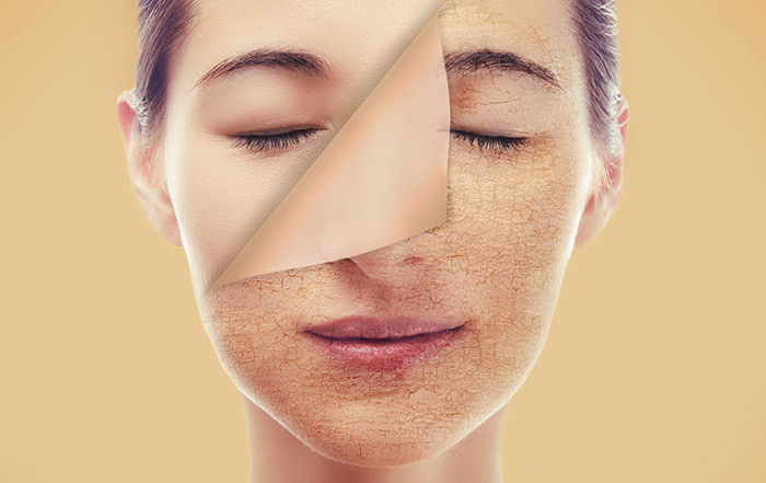 Food for Dry Skin