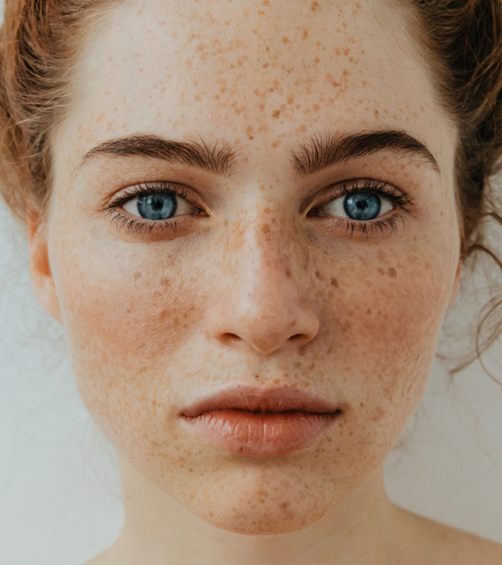 How To Lighten Freckles – Natural Remedies + Treatment Options