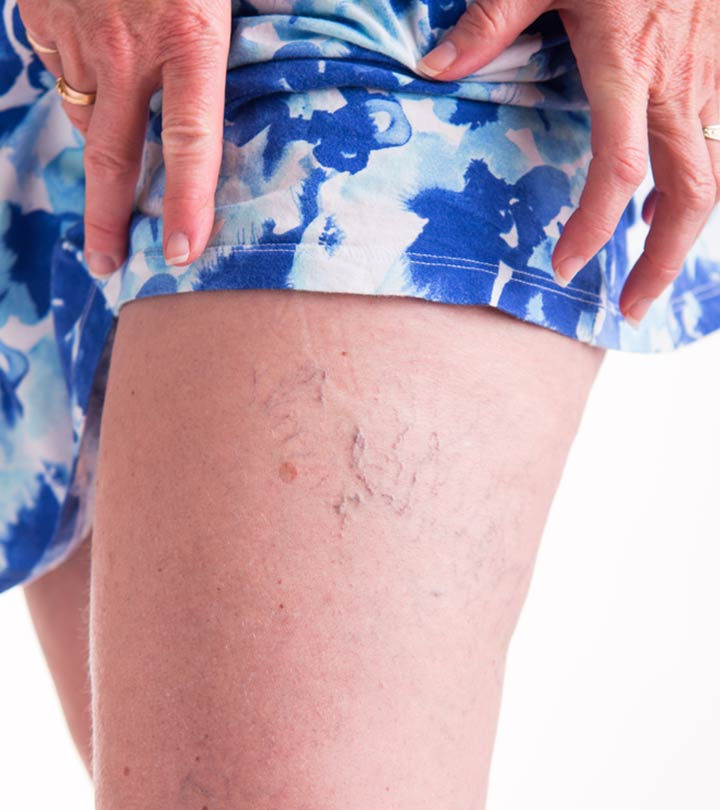 How To Treat Spider Veins Naturally